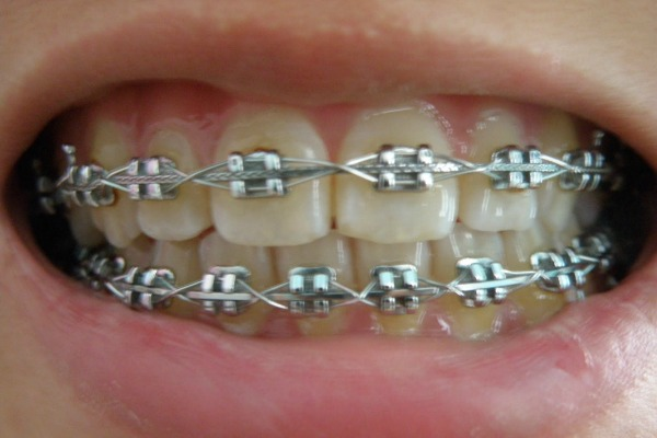 putting braces on teeth