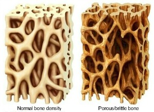 chiropractic osteoporosis