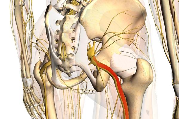 sciatica causes
