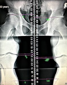 leg length x-ray