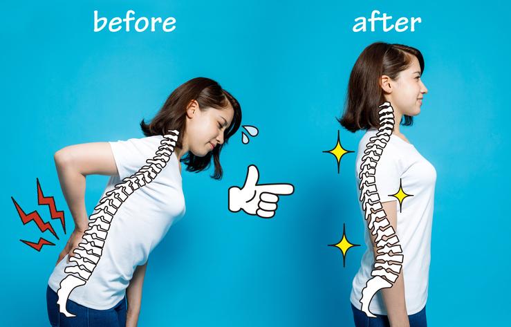 sciatica relief chiropractic