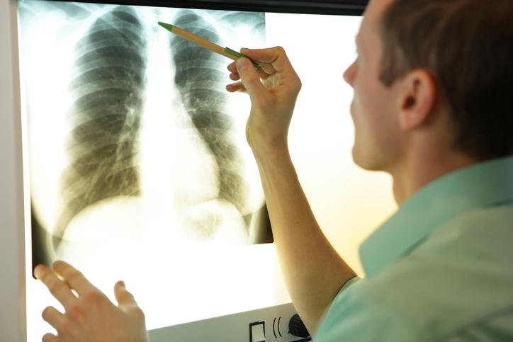 Onsite Chiropractic X-Rays in Houston, TX | CORE Chiropractic