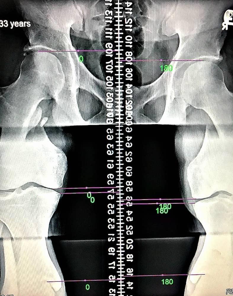 Leg Length Discrepancy Evaluations in Houston, TX | CORE Chiropractic